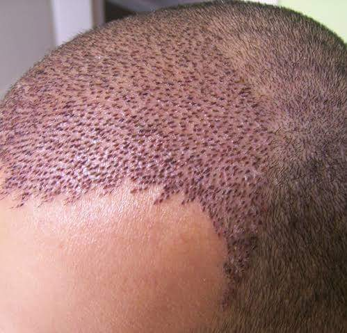 Saç ekimi sonrası traş